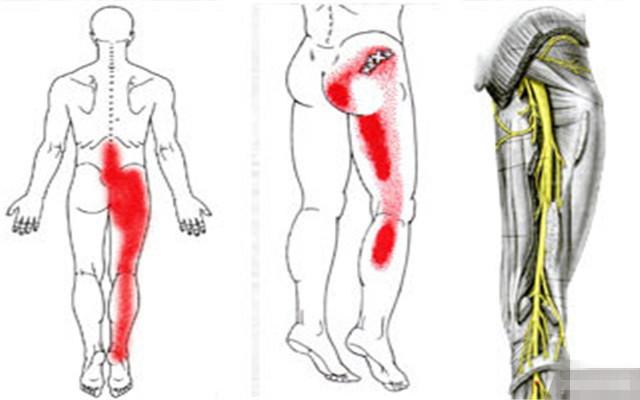 坐骨神经痛的症状表现多为腰部僵硬有不适感,步行或活动时腰及下肢